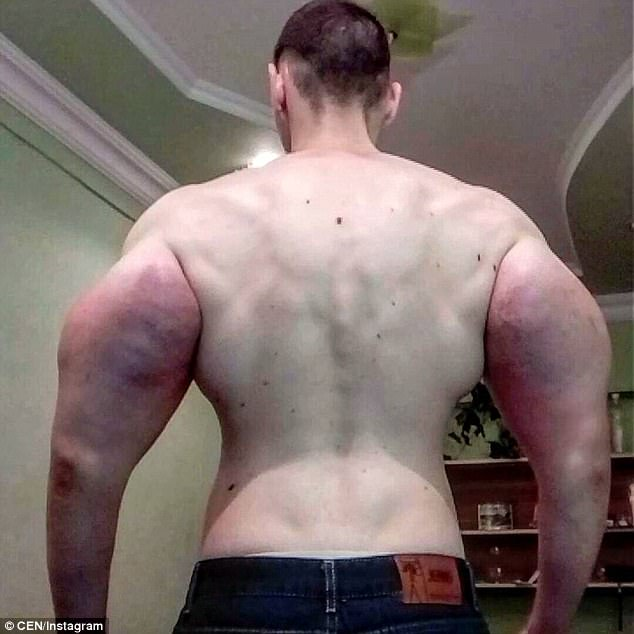 Huge: The 21-year-old started by injecting a smaller amount - 250ml - but has continued to add to his bulging arms with regular oil injections