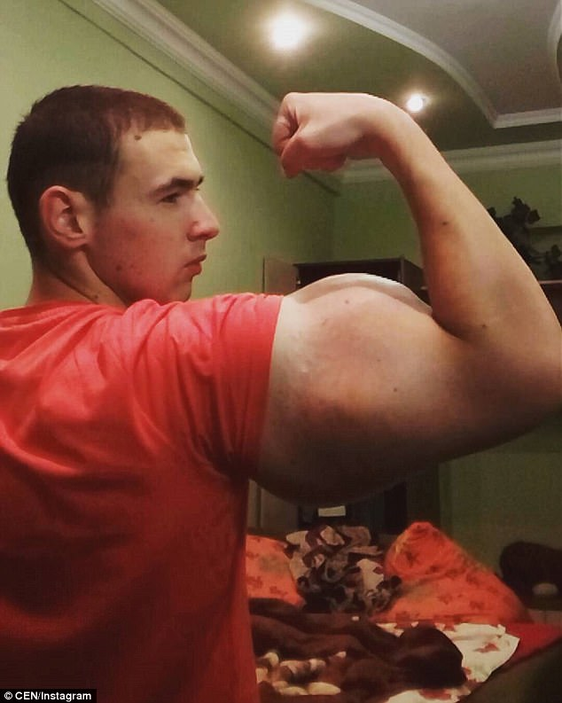 Pumped up: Synthol, which Mr Tewreshin injects regularly, is made up of 85 per cent oil, 7.5 per cent lidocaine, and 7.5 per cent alcohol