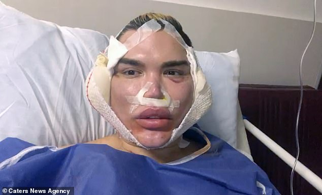 Brave:The latest five-hour operation for the plastic surgery loving star, 35, took place in Tehran, Iran on Sunday, with Rodrigo unveiling his bandaged and stitched face on Instagram