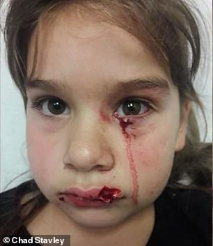 Mirna Gonzalez has filed a lawsuit on behalf of her daughter, Gabriella Gonzalez (pictured), claiming dog owner Michelle Brannan should have known her animal had